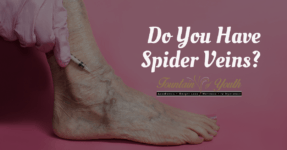 Do You Have Spider Veins?