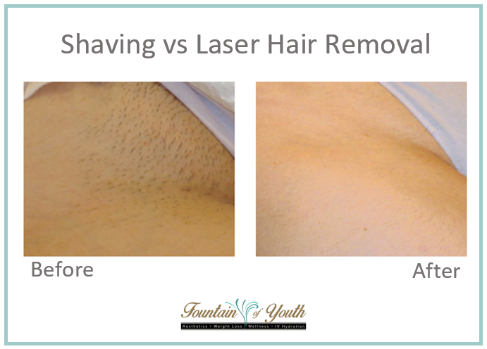 Lasers - Laser Hair Removal