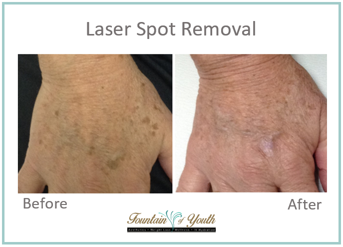 Lasers - Sun Spot Removal