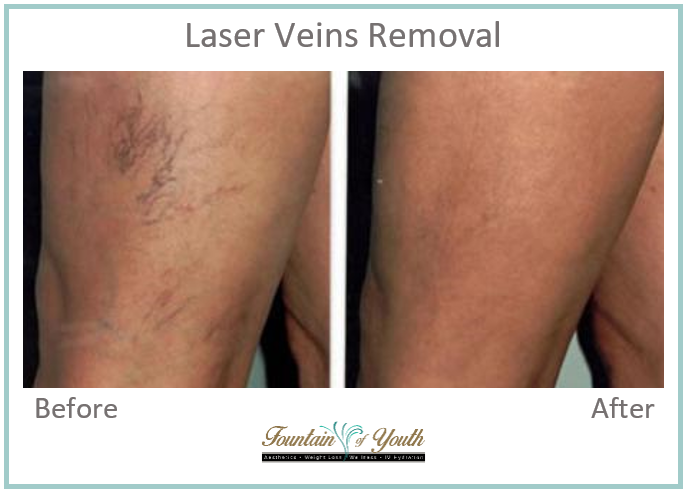 Lasers - Spider Veins Removal