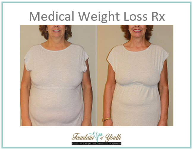 Medical Weight Loss - RX